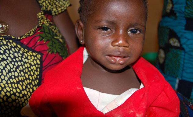 Plastic Surgery Camps (Nigeria)