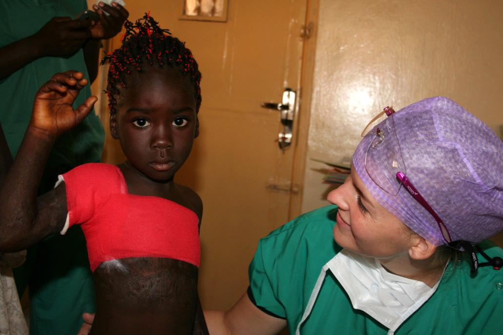 Dit meisje kan haar arm weer heffen en zwaaien nadat de brandwondcontractuur onder haar oksel is geopereerd